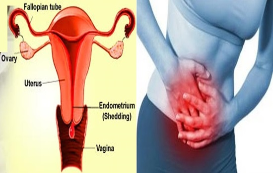 Common Causes Your Menstruation is Heavier Than Usual.