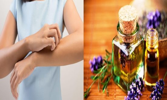 Essential Oils Are The New Natural Skin Aggressors.