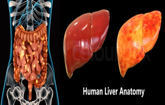 Fatty liver might be enhanced by gut organism