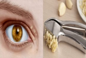 Natural Remedies to Shrink Cholesterol Deposits Around the Eyes