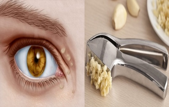 Natural Remedies to Shrink Cholesterol Deposits Around the Eyes.
