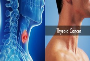 Symptoms of Thyroid Cancer to Be Aware of