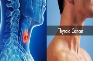 Symptoms of Thyroid Cancer to Be Aware of.