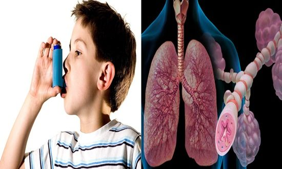 What are the most ideal approaches to analyze and manage asthma