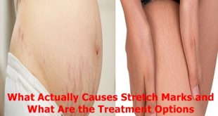 Causes Stretch Marks and What Are the Treatment Options