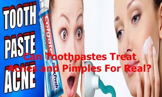 Toothpastes Treat Acnes and Pimples For Real