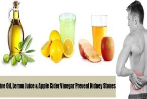 How to Get Rid of Kidney Stones in a Single Day