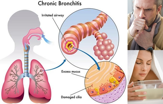 5 Effective Natural Treatments for Chronic Bronchitis