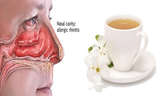 Natural Treatments for Rhinitis
