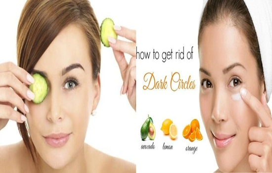 Remedies to the Dark Circles around Your Eyes