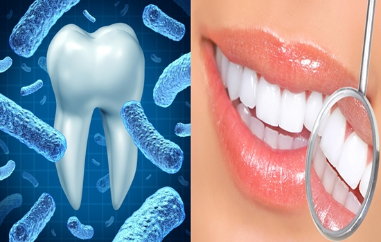Interested to Know How to Take Care of your Dental Health?  Read this One