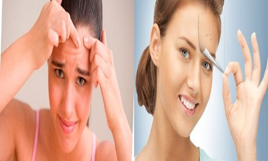 Best tips to get rid of acne