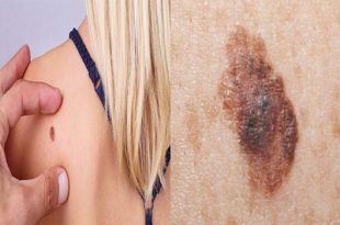Do you have skin cancer