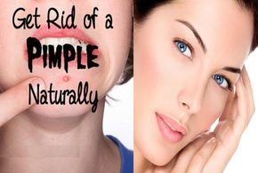 4 Natural Ways to Get Rid of Pimples