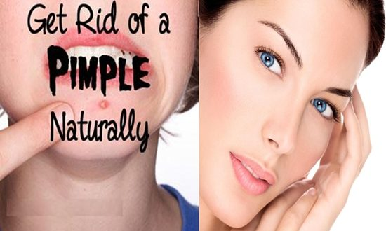 Natural Ways to Get Rid of Pimples