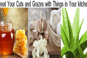 Got a Cut but Got No Disinfectant? Treat Your Cuts and Grazes with the Things in Your kitchen