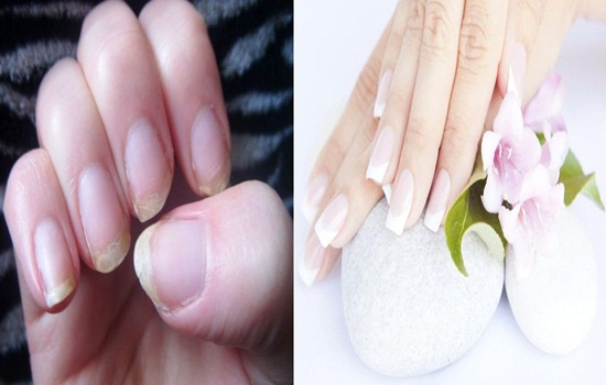 Strengthen Your Brittle Nails with these Amazing DIY Remedies