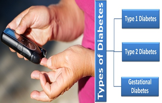 What are the types of diabetes