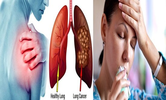 4 Early Signs of Lung Cancer you Shouldn't Ignore