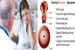 5 Warning Symptoms of Cervical Cancer