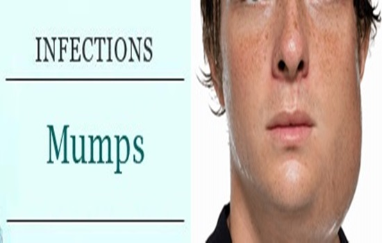 All You Need To Know About Mumps