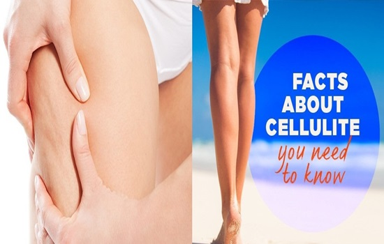 Facts You Need To Know About Cellulite