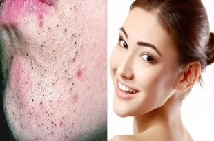 Get rid of blackheads with these secret natural ingredients