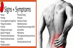 Kidney disease symptoms and signs that you need to know