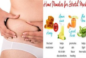 Say Goodbye to Stretch Marks With These Natural Remedies