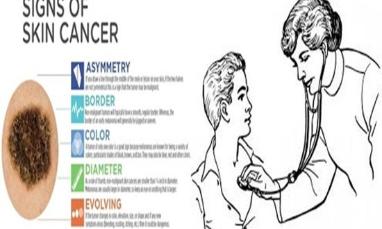 Symptoms of skin cancer that you should be aware of