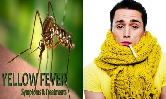 Yellow Fever Symptoms and Treatment