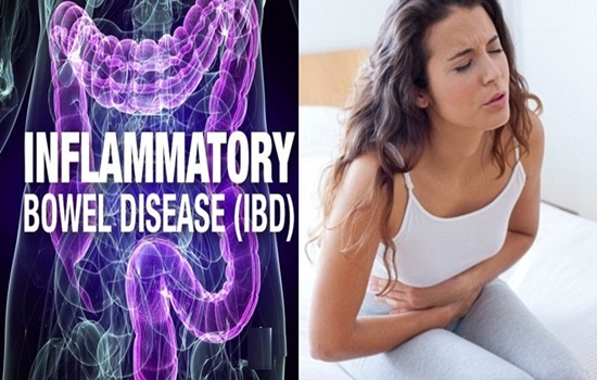 A medical guide to Inflammatory Bowel Disease