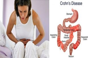 Crohn's Disease,facts that you need to know