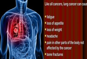 Lung cancer and treatments facts you need to know