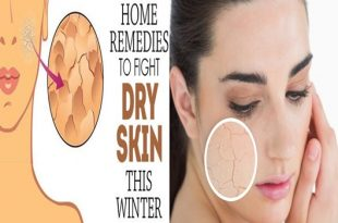 4 Amazing Home Remedies To Fight Dry Skin During Winter