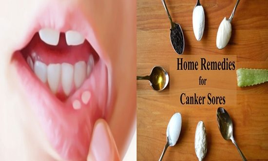 5 Home Remedies For Canker Sores