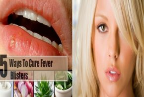 5 Home Remedies To Get Rid Of Fever Blisters
