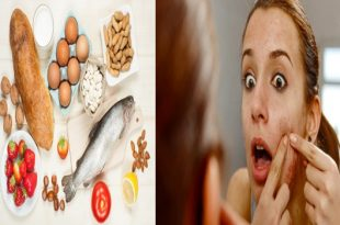 6 Acne Triggers Foods