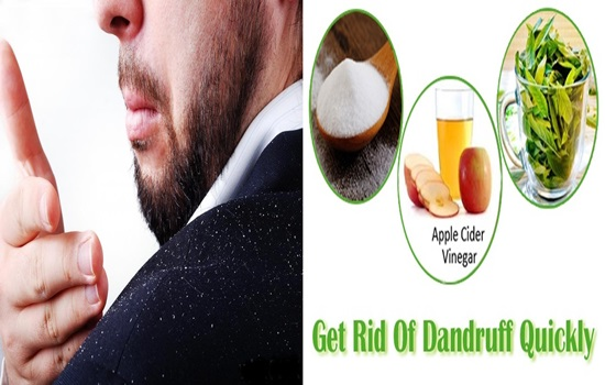 6 Natural Home Remedies To Get Rid of Dandruff