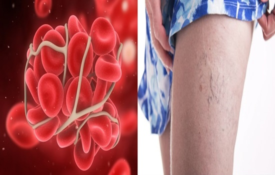 6 Signs You May Have A Blood Clot In Your Leg