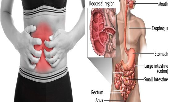 6 Signs You May Have Ulcerative Colitis
