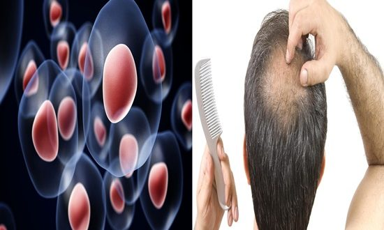 A study explains the function of stem cells in hair growth