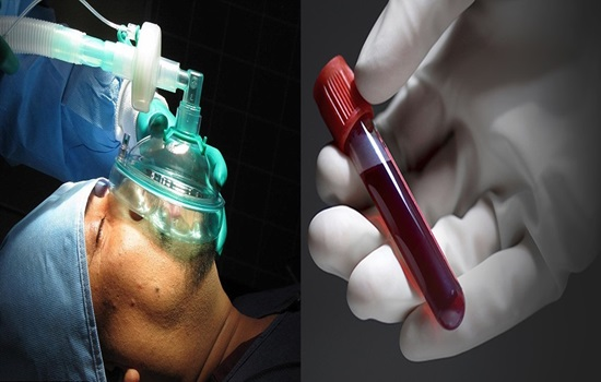 Blood tests can explain the after surgery confusion