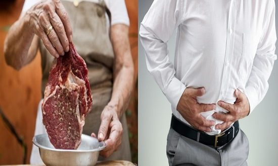 Common bowel condition diverticulitis linked to red meat diet