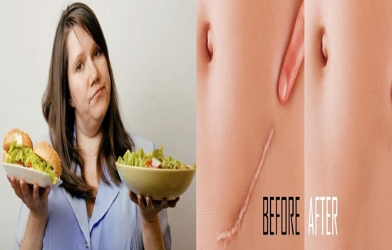 Fat can help wounds recuperate without scars