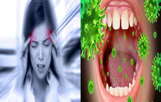 Migraines linked to mouth bacteria