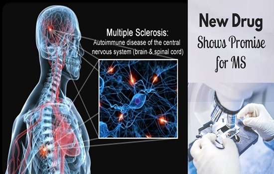 New great Achievement in MS treatment
