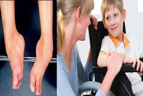 Sleep disorder therapy helps patients with muscular dystrophy