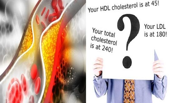 A guide to different Cholesterol types and levels