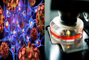 Cell adherence may foresee metastasis capability of cancer cells